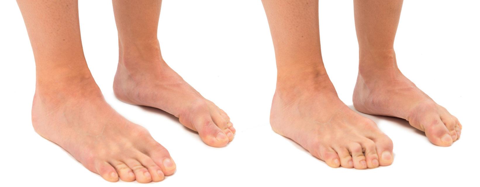 25f21d4f1f3 Glöm inte fötterna på träningen! | SISU Idrottsböcker